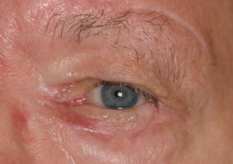 ectropion-cicatricie-droit